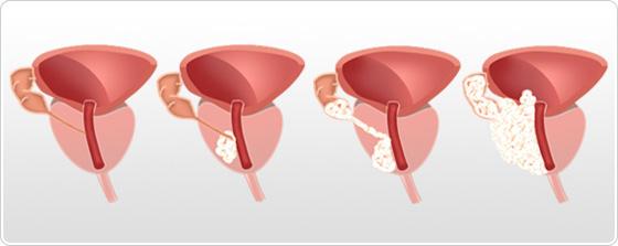 Prostat Kanserinin Kaç Evresi Vardır?