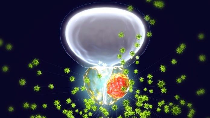 Prostat Kanseri Tanı ve Tedavisi Nasıldır?