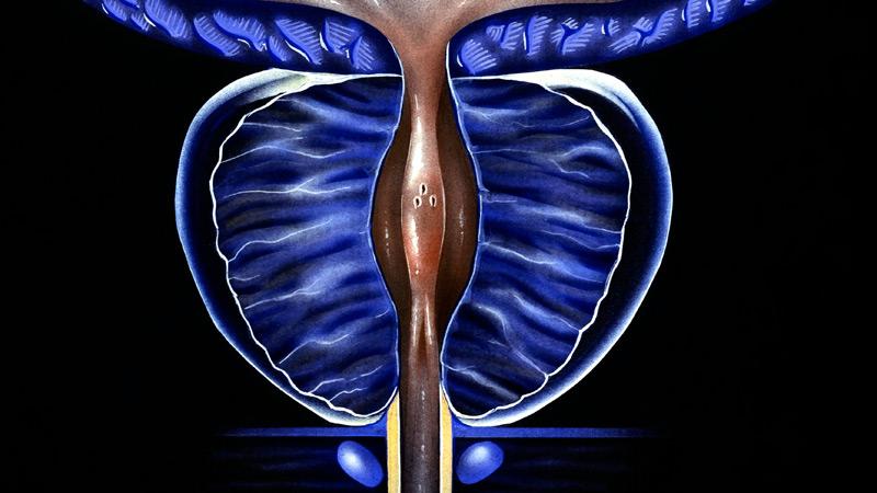 Prostat Hastalıkları Tanısında Kullanılan Yöntemler Nelerdir?