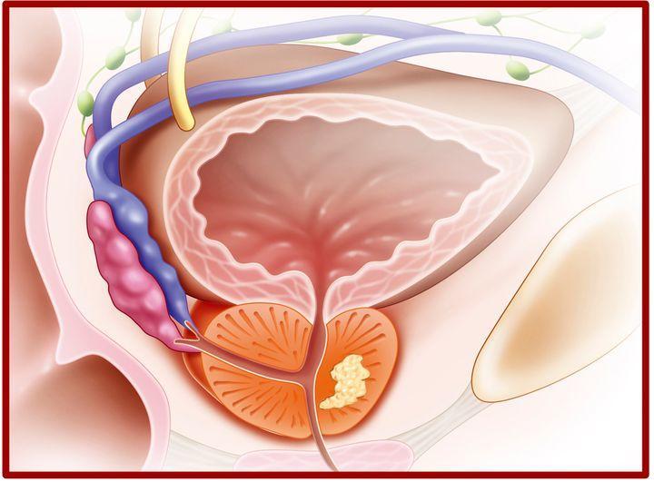 Prostat Kanserinde Erken Tanı